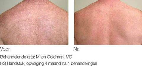 Laserbehandeling rug voor na