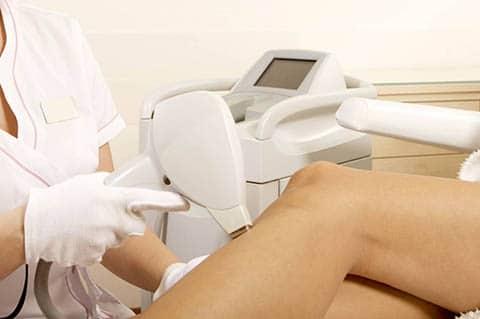 laserontharing benen